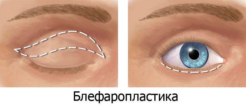 Блефаропоастика