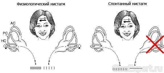 Физиологический и спонтанный нистагм