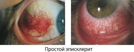Типы простого эписклерита