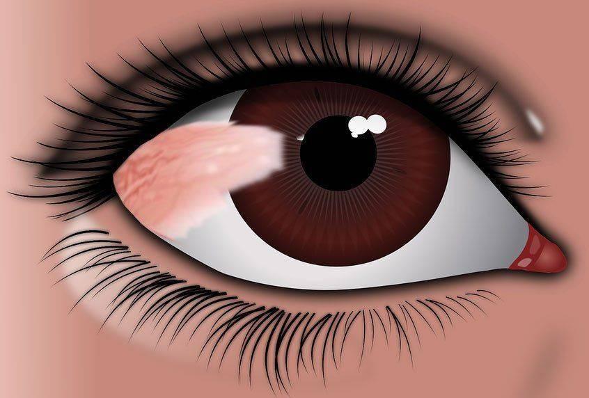 Птеригиум на глазу