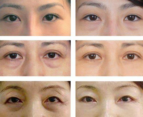 Фото до и после блефаропластики