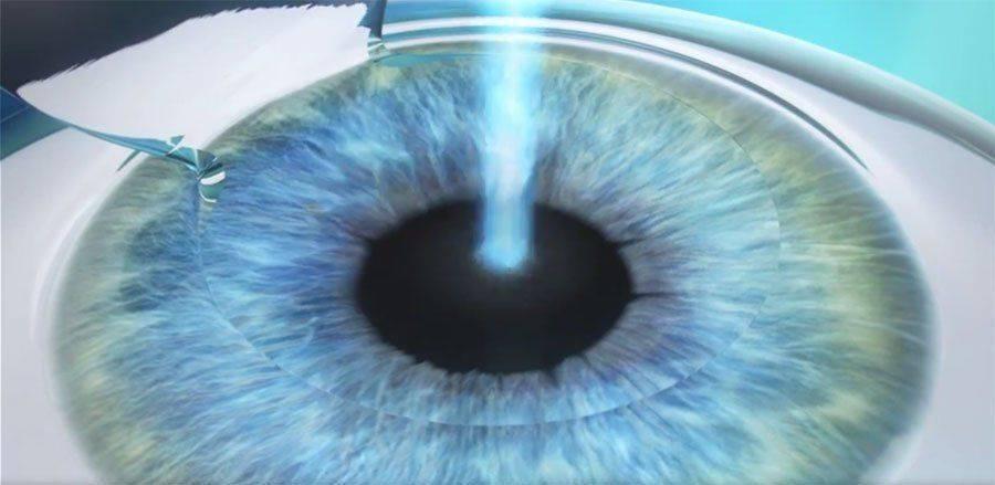 femto lasik: исправление дефектов лазером