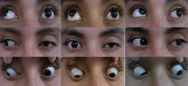 Как проявляется офтальмоплегия