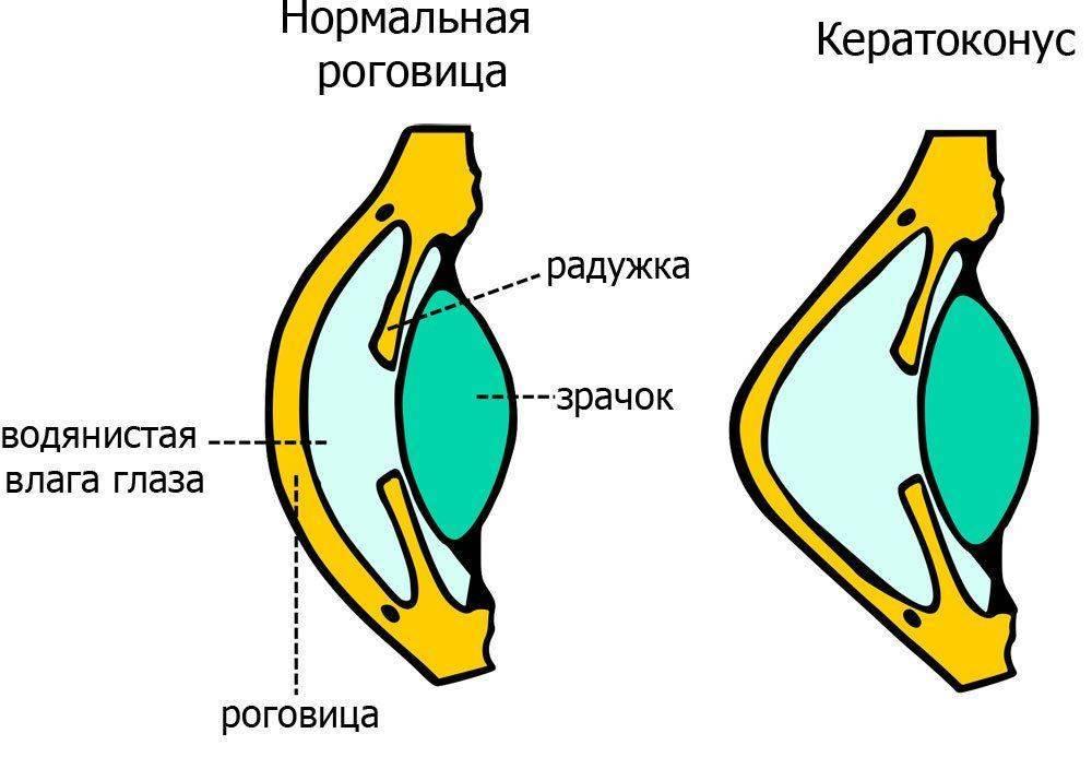 Нормальный глаз и с кератоконусом