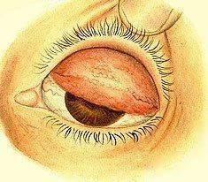 Как выглядит трахома