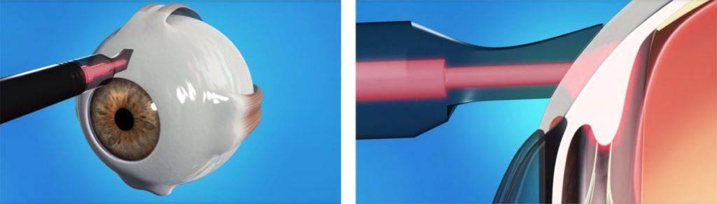 Циклофотокоагуляция лазером