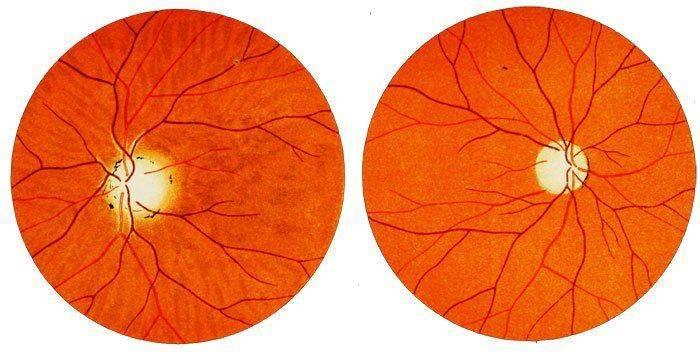 Возможный вид глазного дна после биомикроскопии