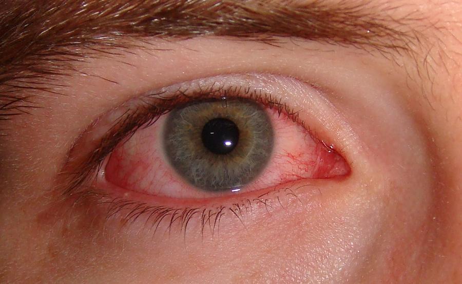 Коньюнктивит на глазу