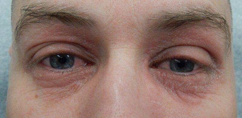 Как выглядит дерматит у глаз
