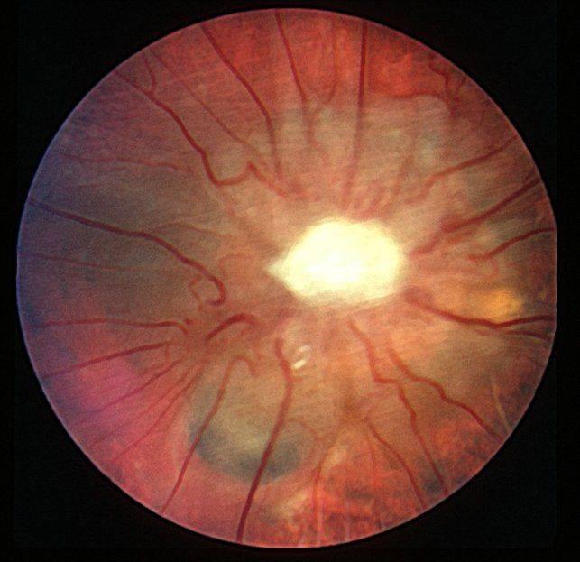 Что такое атрофия зрительного нерва
