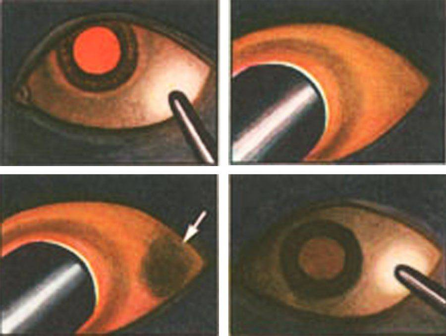 Диафаноскопия: этапы