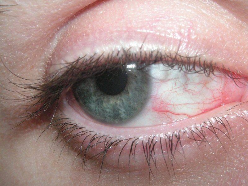 Раздражение глаза