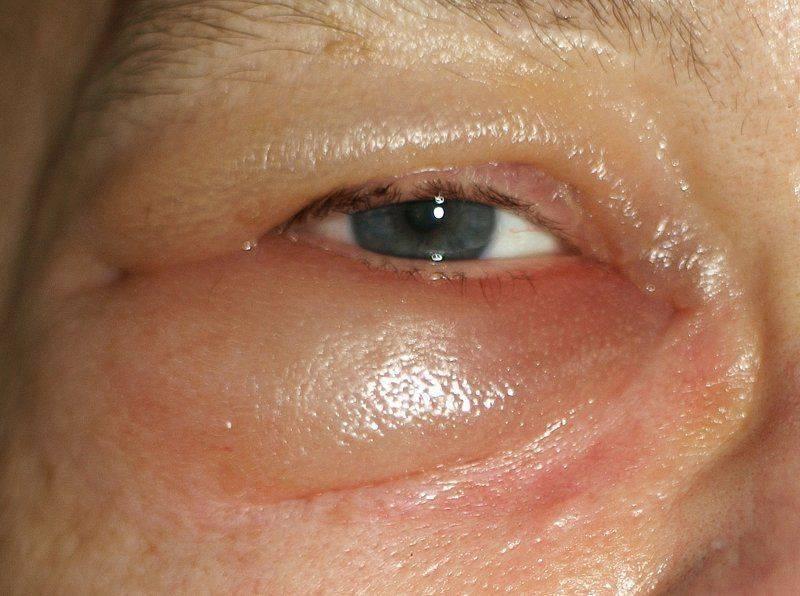 Как выглядит отёкший глаз