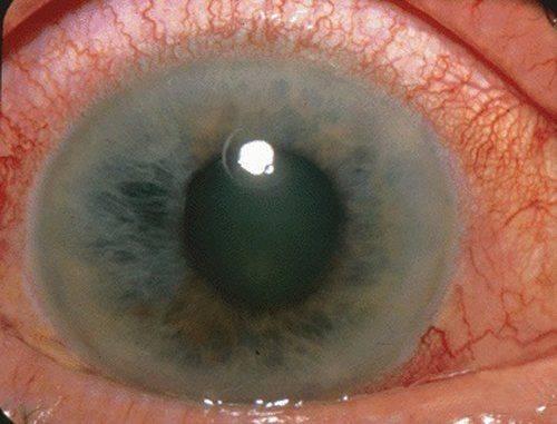 Как проявляется глаукомы на глазу (вариант)