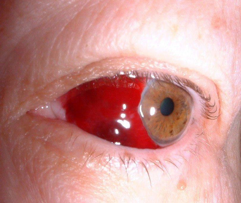Гемофтальм: кровоизлияние в глаз