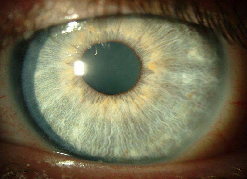 Кератит глаза: как выглядит