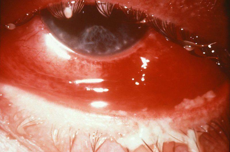 Вирусный кератит на глазу