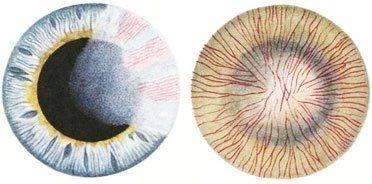 Кератит на фоне сифилиса