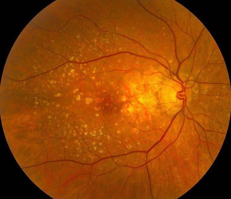 Макулодистрофия: снимок глазного дна