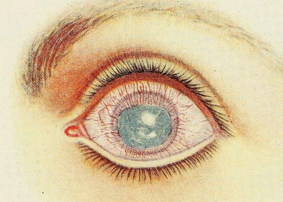 Паренхиматозный кератит на глазу