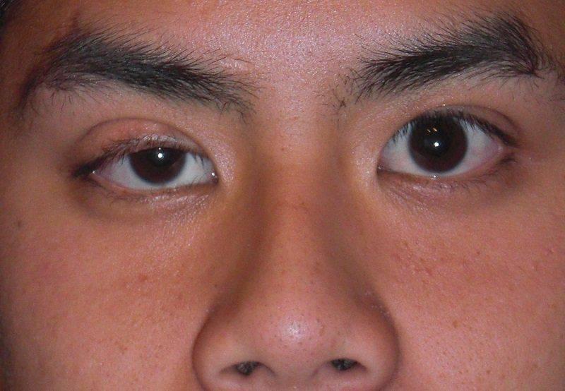 Птоз правого глаза