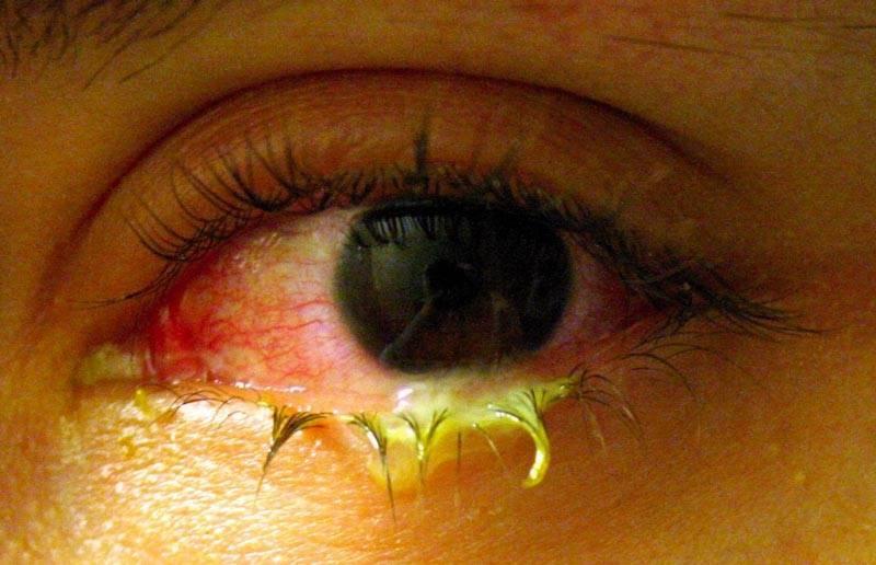 Гноящийся глаз