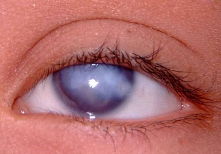 Бельмо: что это такое, причины и чем лечить на глазу, как убрать у человека
