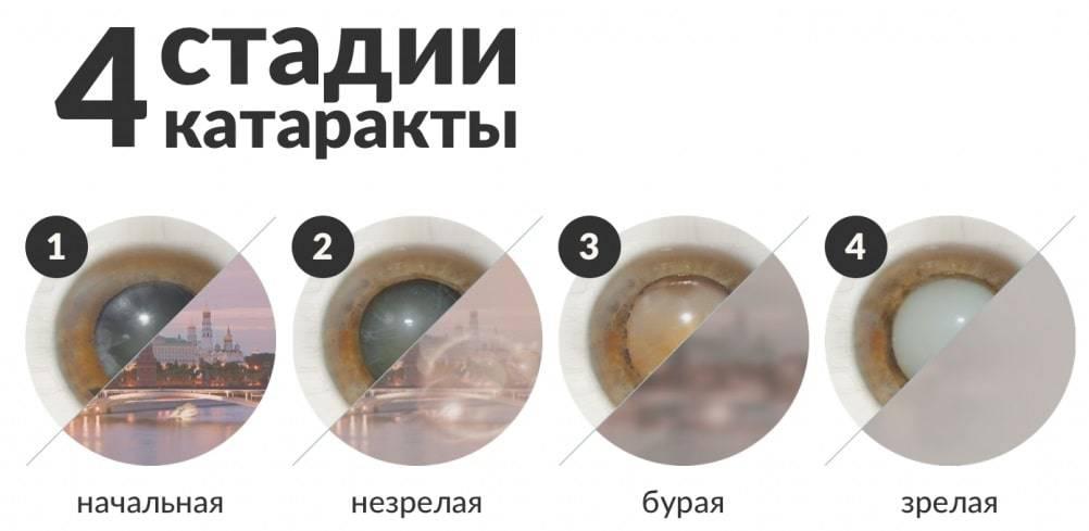 Катаракта в пожилом возрасте: причины, симптомы, операция по замене хрусталика