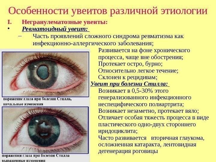 Симпатическая офтальмия — воспалительные поражения глаза. причины, симптомы, лечение