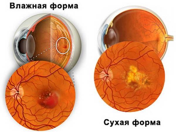 Макулодистрофия или макулярная дегенерации сетчатки -  симптомы, диагностика, лечение