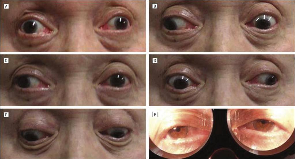 Межъядерная офтальмоплегия — симптомы и лечение