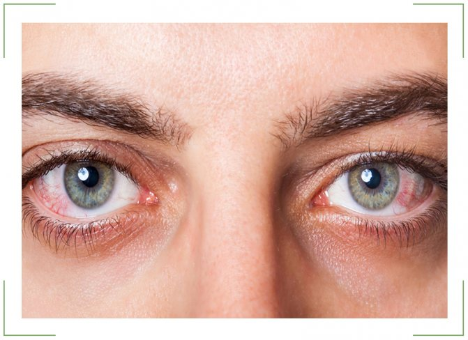 Почему дергается нижнее веко глаза: причины и как избавиться, лечение народными средствами
