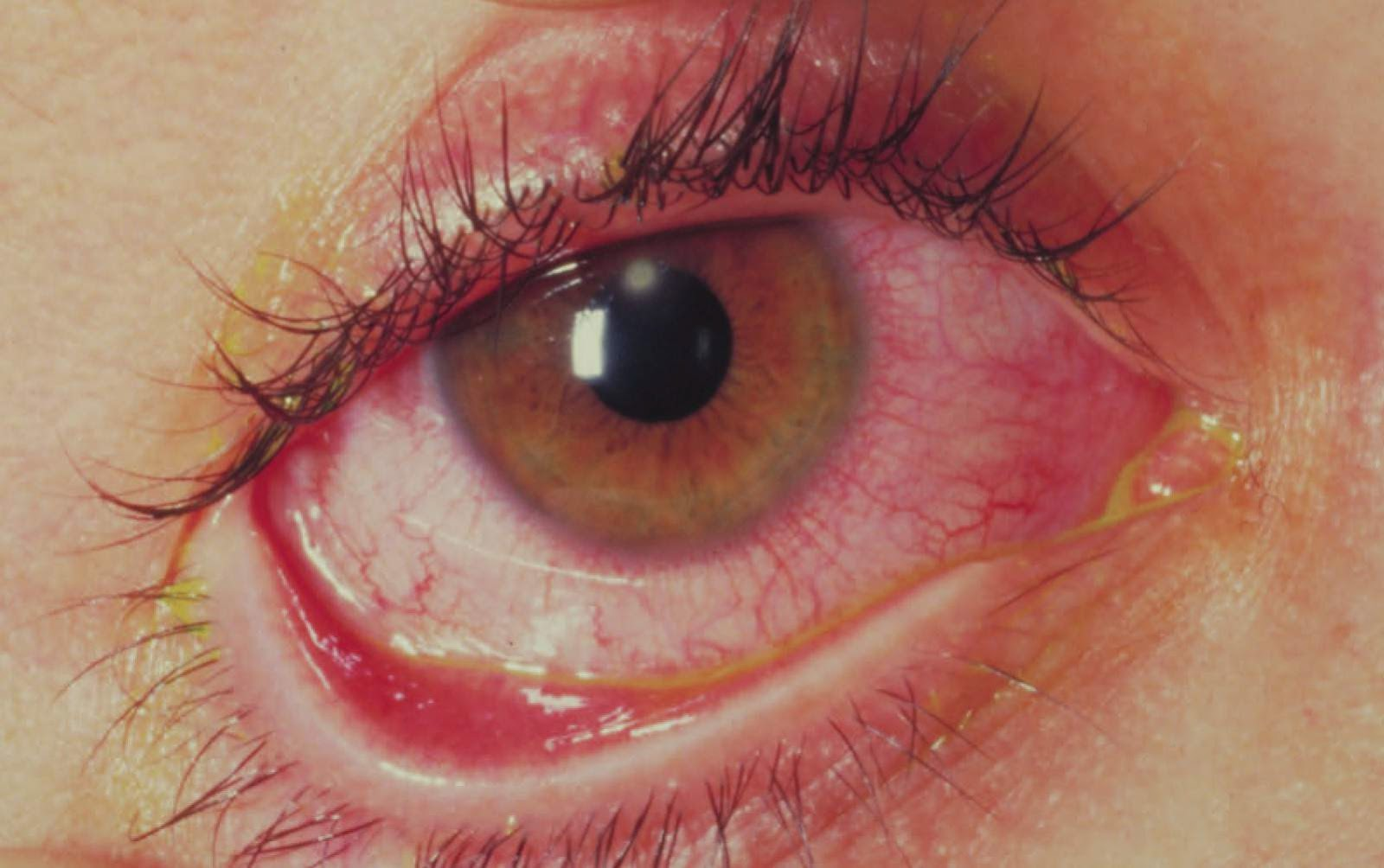 Гиперемия конъюнктивы: причины, симптомы и лечение