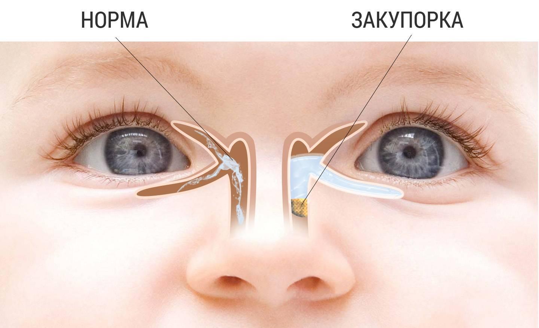 Гноится или закисает глаз у новорожденного: чем лечить и что делать