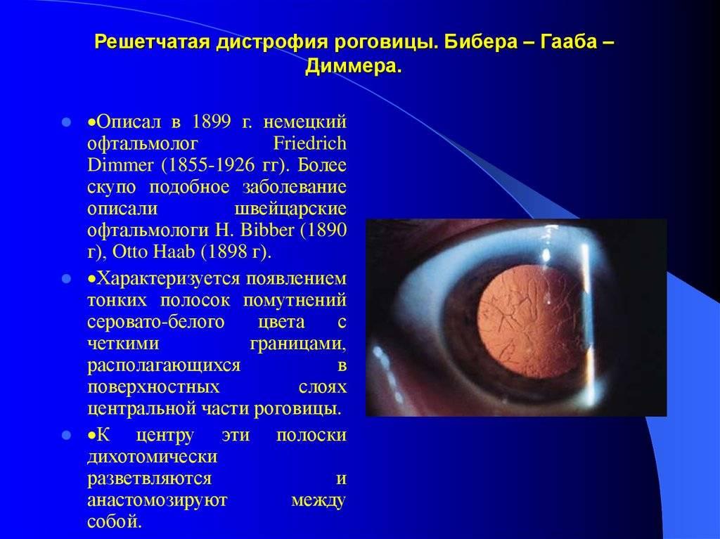Дистрофия роговицы глаза и причины ее возникновения