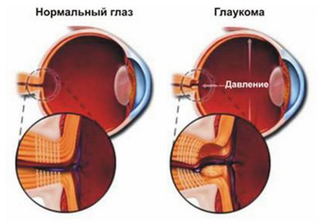 Симптомы глаукомы на ранней стадии у взрослых - как распознать признаки начального этапа заболевания до появления клинических проявлений