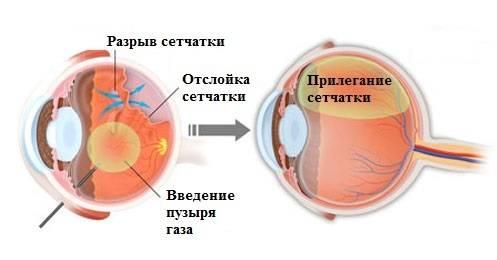 Разрыв сетчатки глаза – симптомы и причины, операция