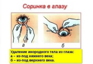 Как вынуть соринку из глаза - wikihow