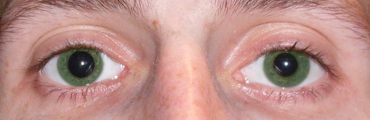 Анизокория — причины, симптомы и лечение