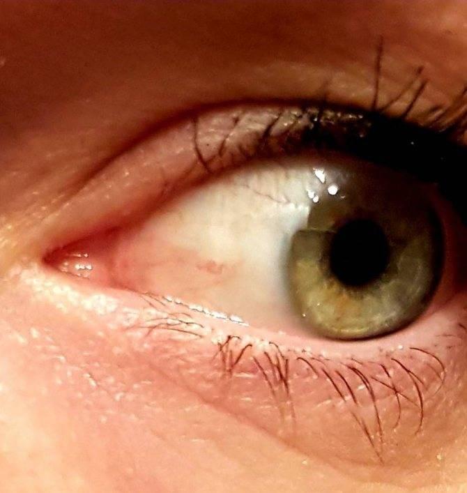 Пингвекула глаза: причины возникновения, лечение (народные средства, капли, удаление лазером), может ли она исчезнуть сама и прочие аспекты + фото