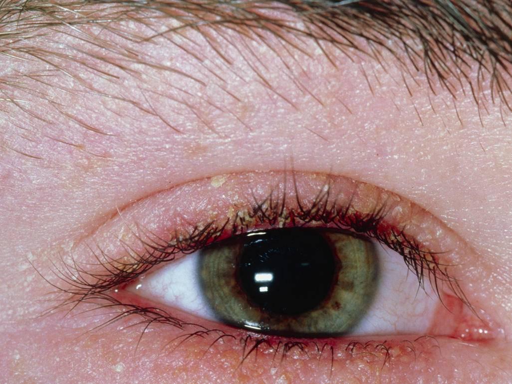 Демодекоз глаз: симптомы и лечение, диагностика и препараты