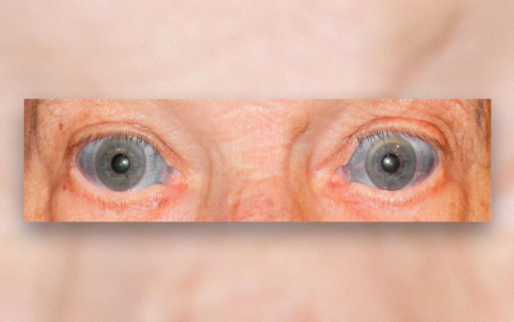 Почему у некоторых людей белки глаз голубого цвета?