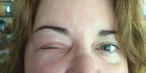 Как можно быстро убрать отеки с глаз после слез?