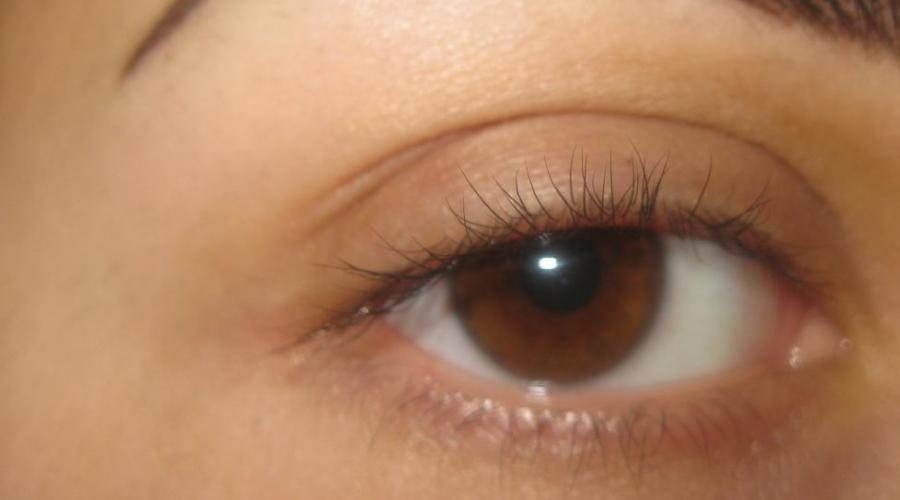 Почему дергается левый глаз и что делать для избавления от нервного тика