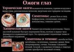 Что делать, если в глаза попала сварка, признаки ожога, способы лечения