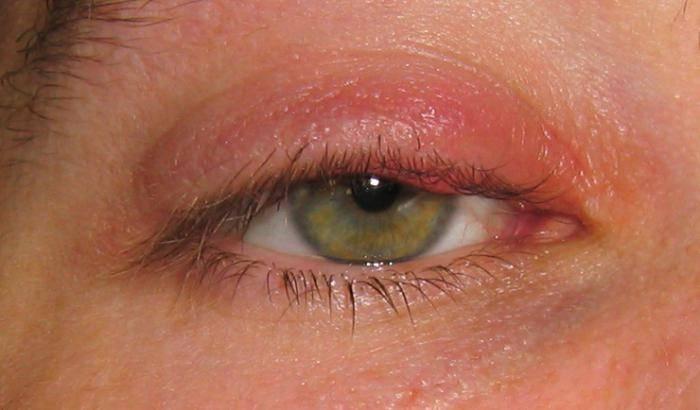 Наружный (внешний) ячмень на глазу: симптомы и лечение