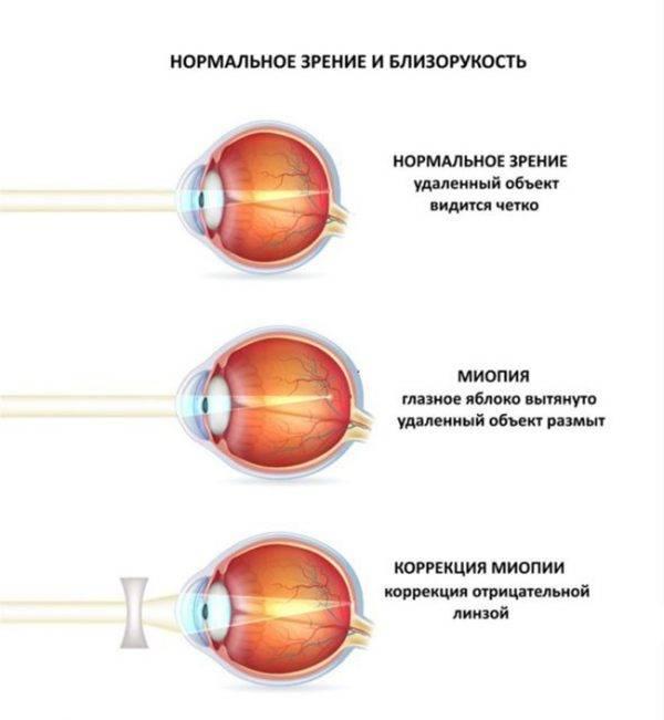 Лечение миопии (близорукости) высокой 3 степени