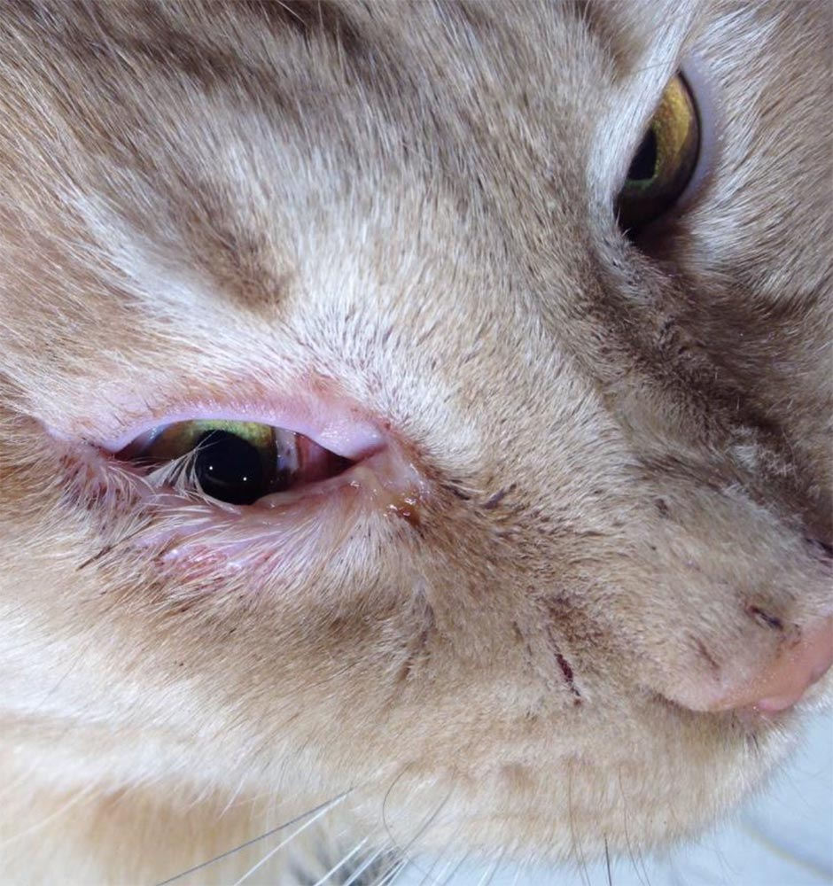 Заворот века глаза у человека (энтропион) - причины и эффективное лечение (операция блефаропластики)