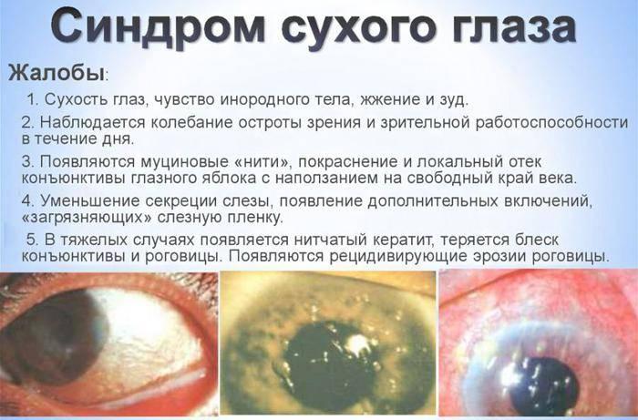 Синдром сухого глаза — симптомы, лечение