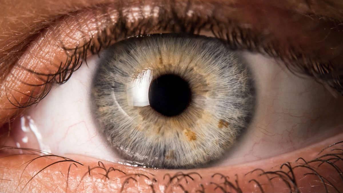 Вспышки в глазах: причины появления и советы по диагностике